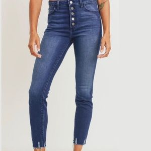 Just Black Button up Skinny Jeans